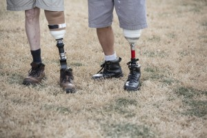 What everyone should know about prosthetic legs