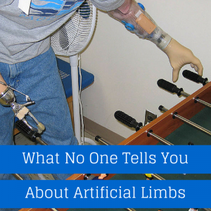 What No One Tells You About Artificial Limbs