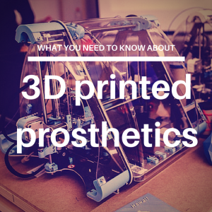 What you need to know about 3D printed prosthetics
