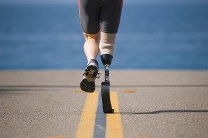 Is it time to replace your prosthetic?